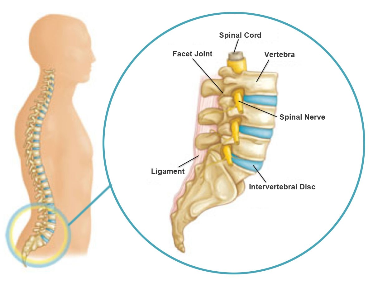 Financial costs aside, dealing with acute or chronic lumbar pain can ...