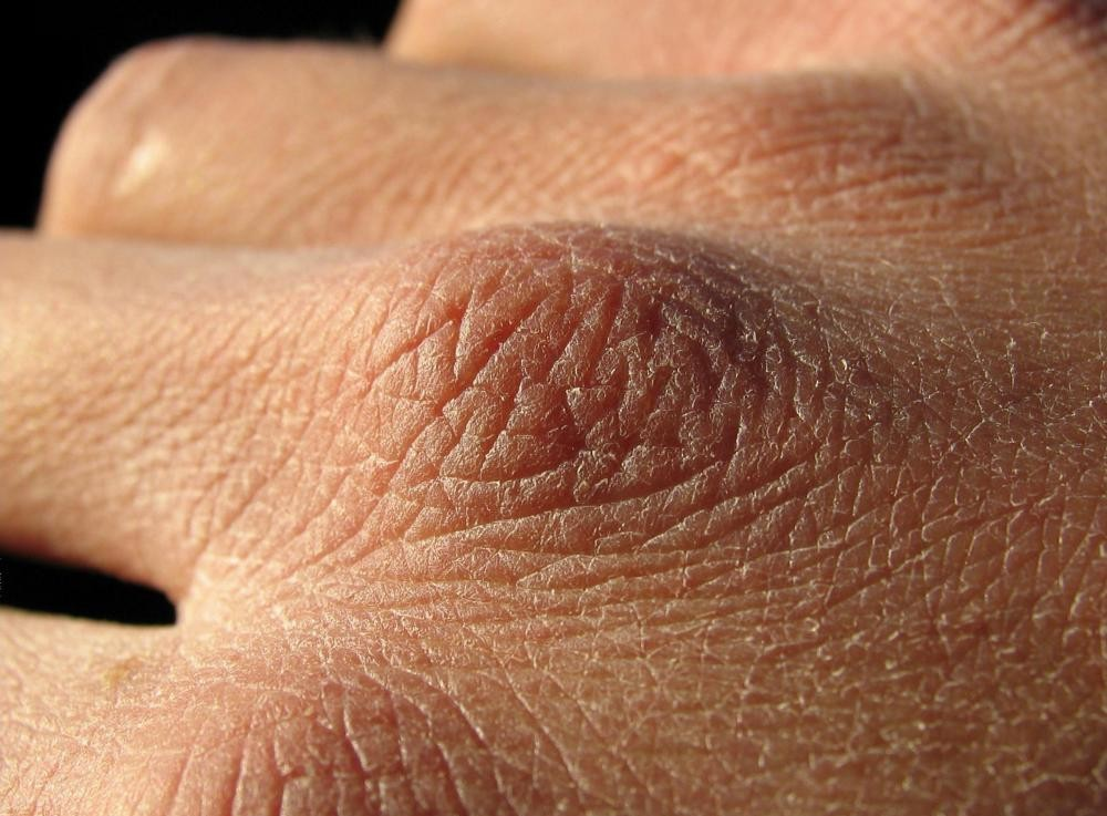 Dry rough skin on penis