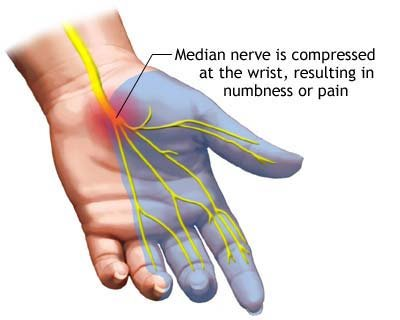 Carpal tunnel syndrome treatment at home