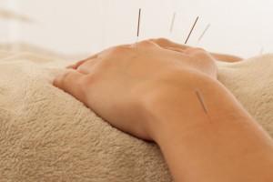 therapeutic acupuncture