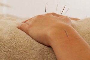 acupuncture therapeutics