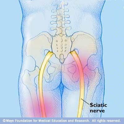 sciatica (1)